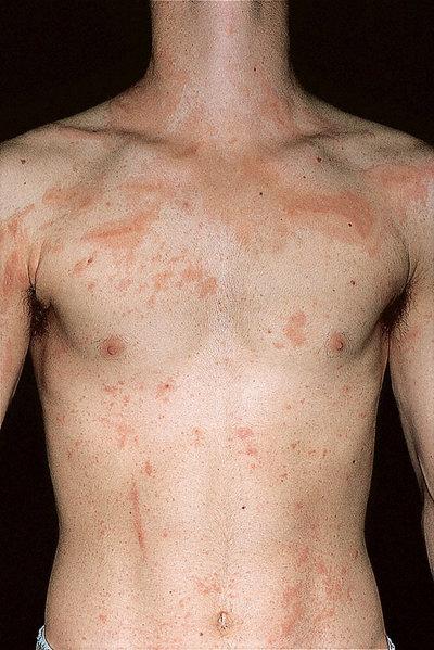 heat rash adult